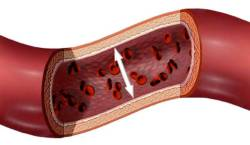 Artery 1
